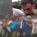 Kosovarski boj u Švajcarskoj: Sevale pesnice, polomljena rebra i arkade posle opšte tuče fudbalera! (FOTO) (VIDEO)