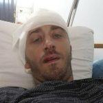 Zbog napada na Kovačevića više od 20 saslušanih, pronađeni dokazi