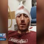 Policija intenzivno traga za napadačima na novinara (VIDEO)