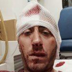Napad na novinara Kovačevića pokušaj ubistva
