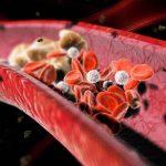 Kako lako sniziti holesterol u krvi