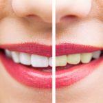 Crna pasta za zube košta kao i obična, a od kada je koristim učinila je čuda za moje zube