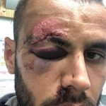 ŽRTVA BRUTALNOG NAPADA Slaven Belupo objavio fotografije pretučenog igrača (FOTO)