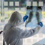 Ovo su trajne posljedice koje ostavlja virus korona