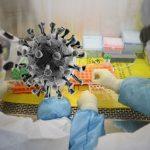 U Srpskoj 76 slučajeva virusa korona