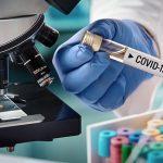 U Srpskoj 47 novih slučajeva virusa korona